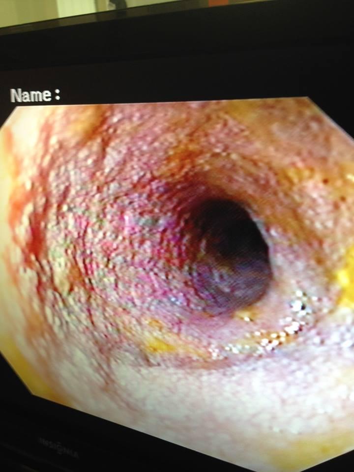 View Endoscopy Procedure: Endoscopy Sheds Light On Tummy Trouble