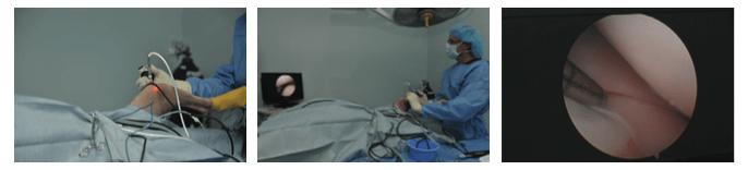 Arthroscopy With Canine Cranial Cruciate Ligament Disease